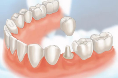 Dental-Crown2
